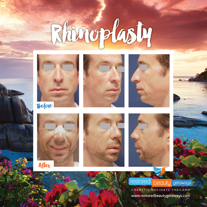 1623.RBG_rhinoplasty10