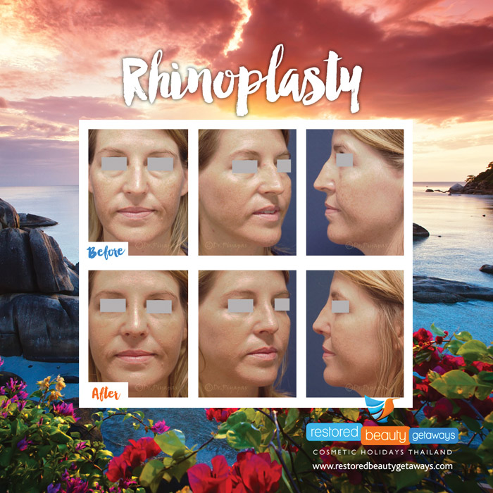 1623.RBG_rhinoplasty11
