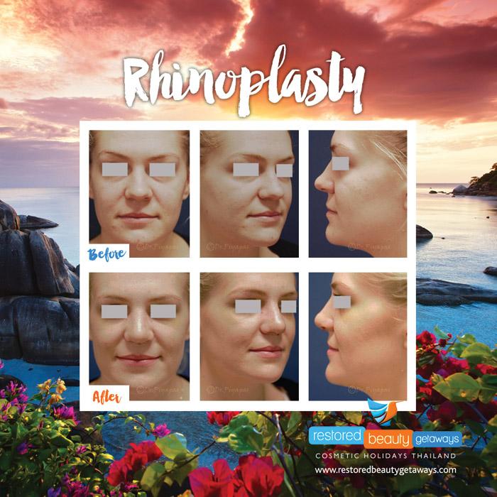 1623.RBG_rhinoplasty14