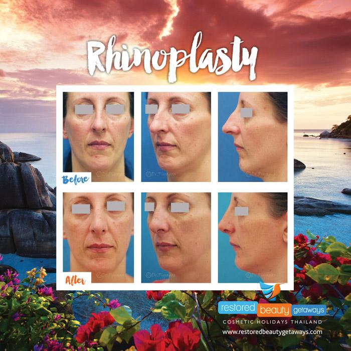 1623.RBG_rhinoplasty26