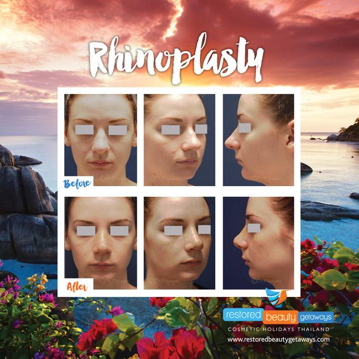 1623.RBG_rhinoplasty5