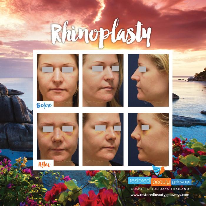 1623.RBG_rhinoplasty6