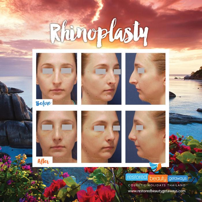 1623.RBG_rhinoplasty9