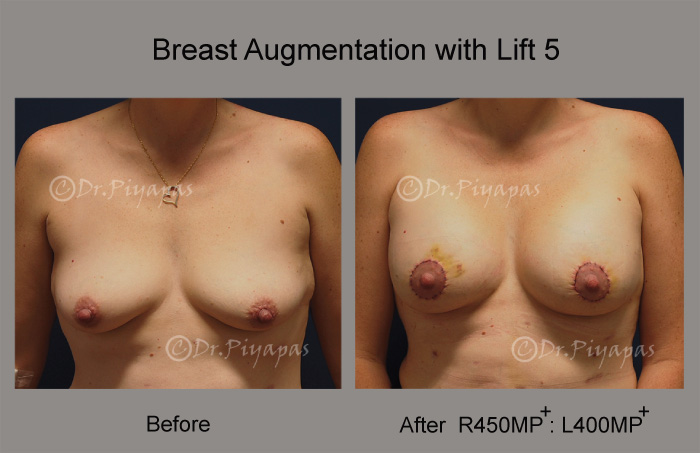 breast-augmentation-with-lift-11