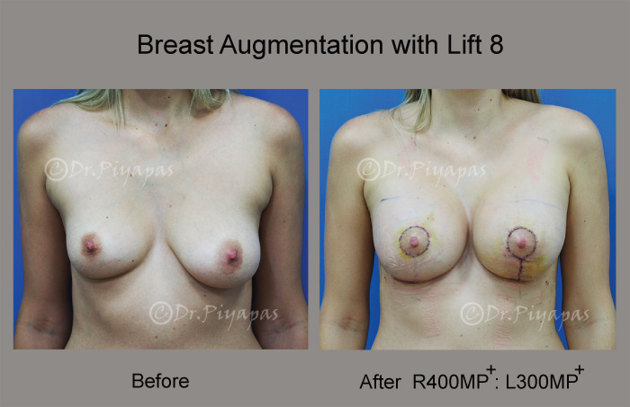 breast-augmentation-with-lift-17