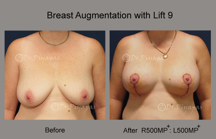 breast-augmentation-with-lift-19