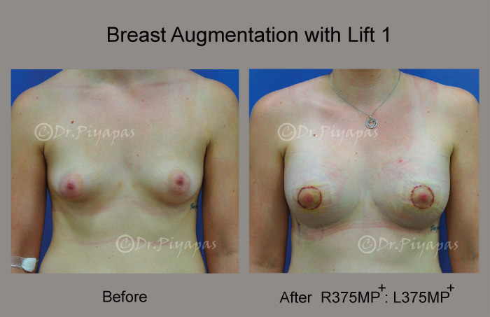 breast-augmentation-with-lift-3