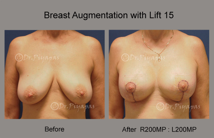 breast-augmentation-with-lift-31