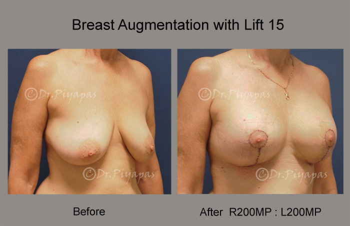 breast-augmentation-with-lift-32