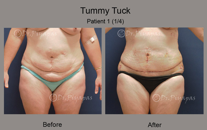 tummy-tuck1