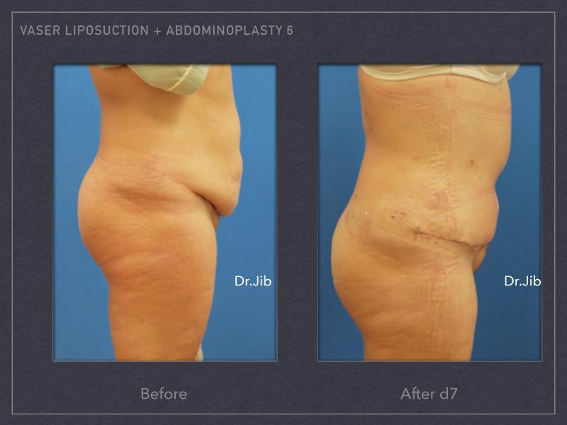abdominoplasty-10