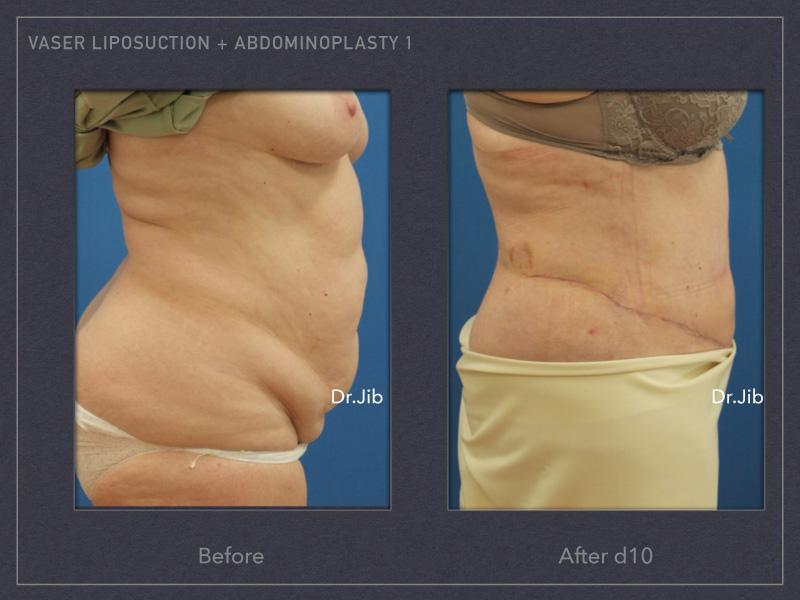 abdominoplasty-2
