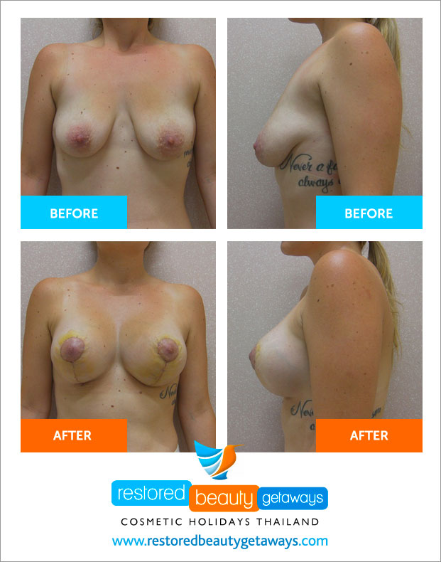 before_after_dr_teerasut