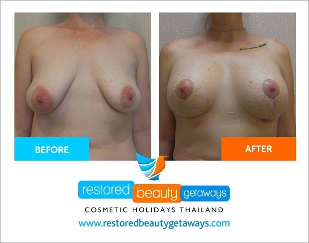 before_after_dr_teerasut_2