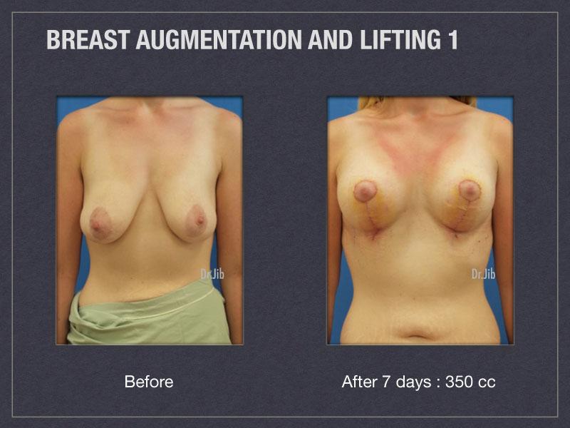 breast-augmentation-lift-1