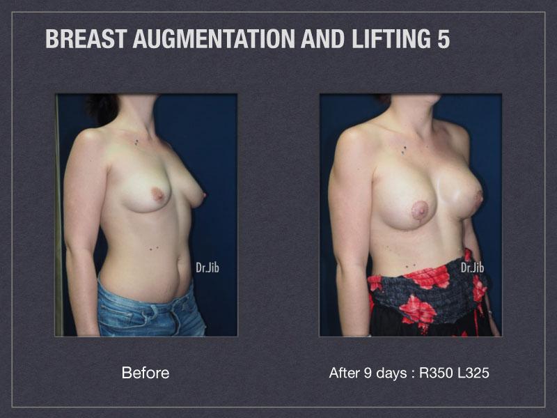 breast-augmentation-lift-10