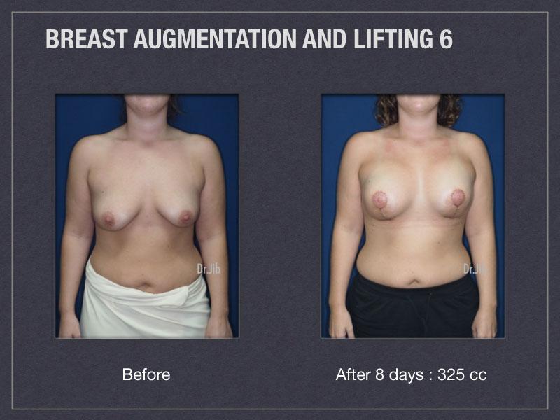 breast-augmentation-lift-11