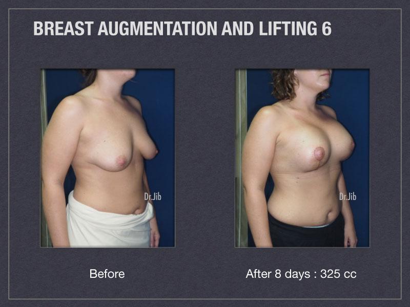 breast-augmentation-lift-12