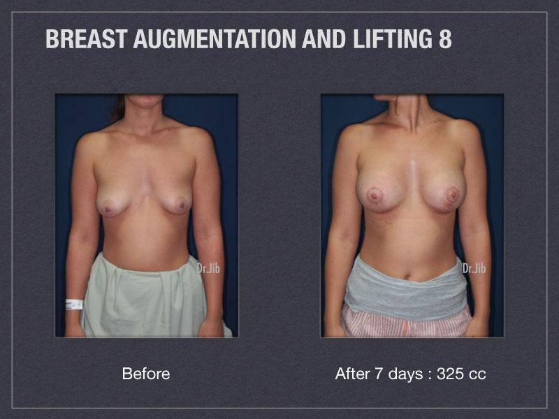 breast-augmentation-lift-15