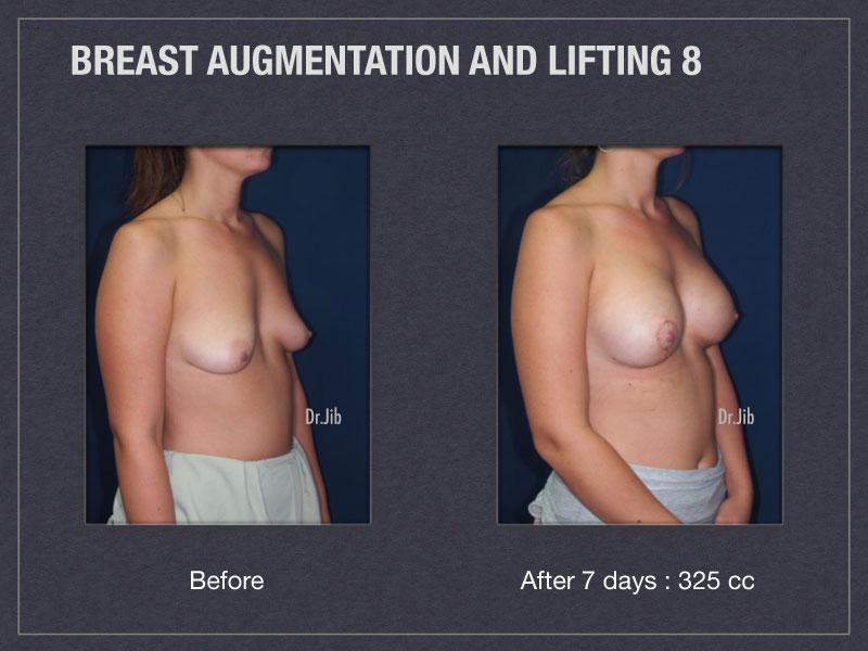 breast-augmentation-lift-16