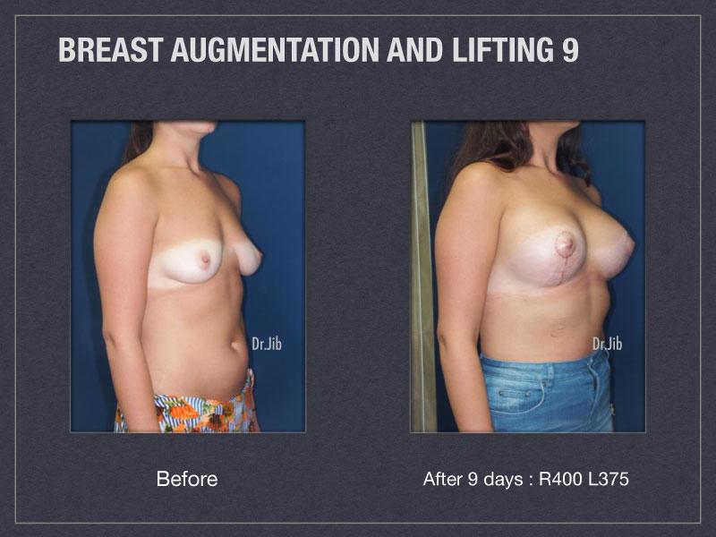 breast-augmentation-lift-18