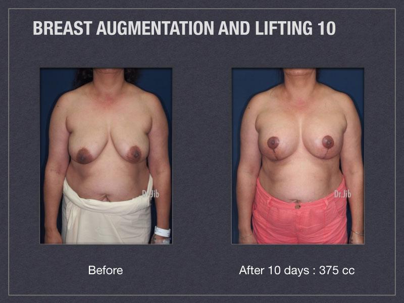 breast-augmentation-lift-19