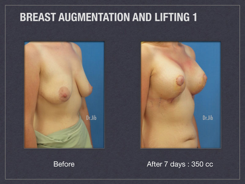 breast-augmentation-lift-2