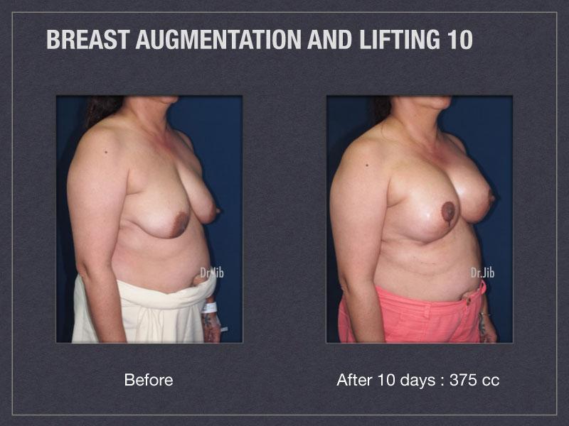 breast-augmentation-lift-20