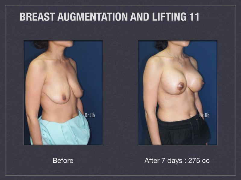 breast-augmentation-lift-22