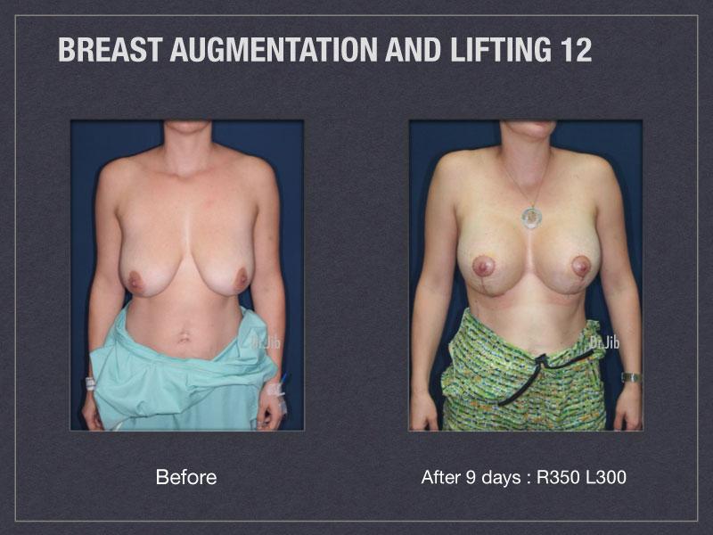 breast-augmentation-lift-23