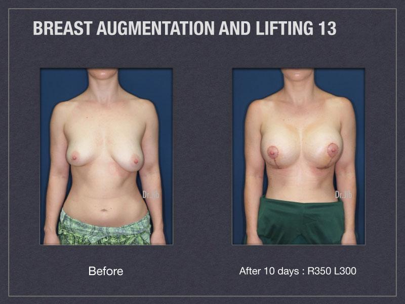 breast-augmentation-lift-25
