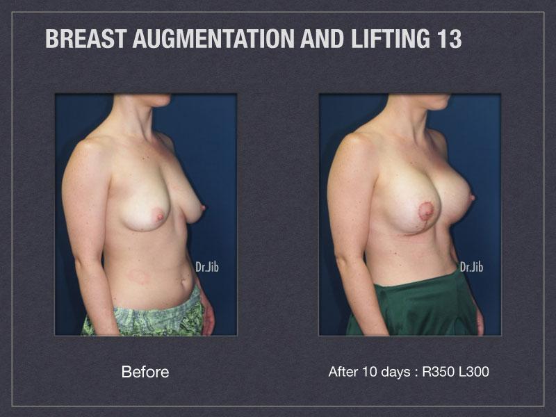 breast-augmentation-lift-26