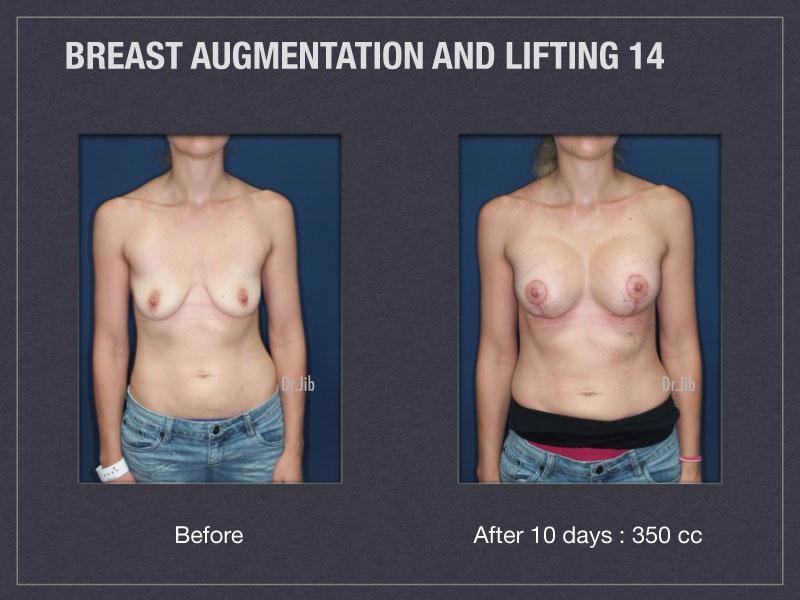 breast-augmentation-lift-27