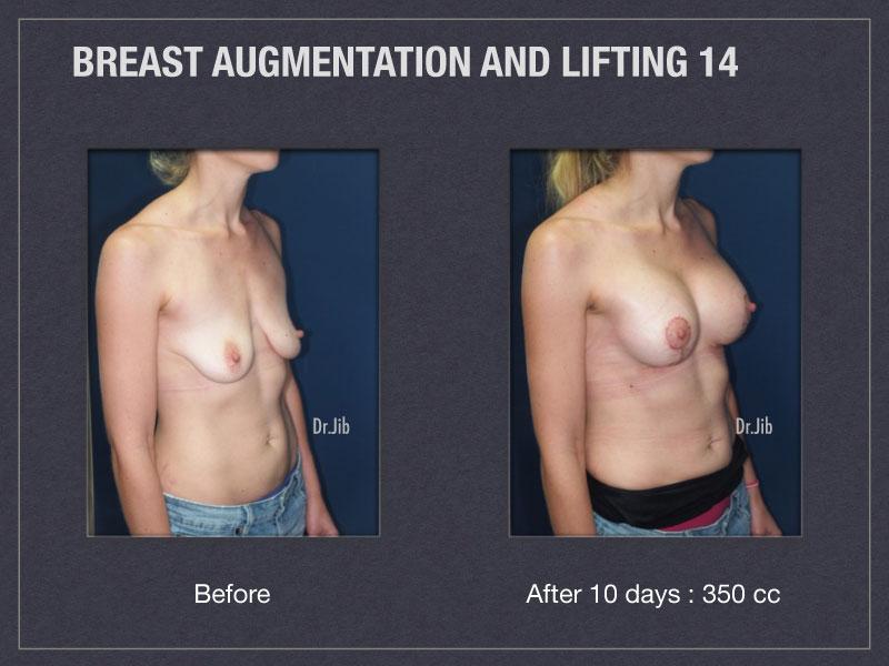breast-augmentation-lift-28