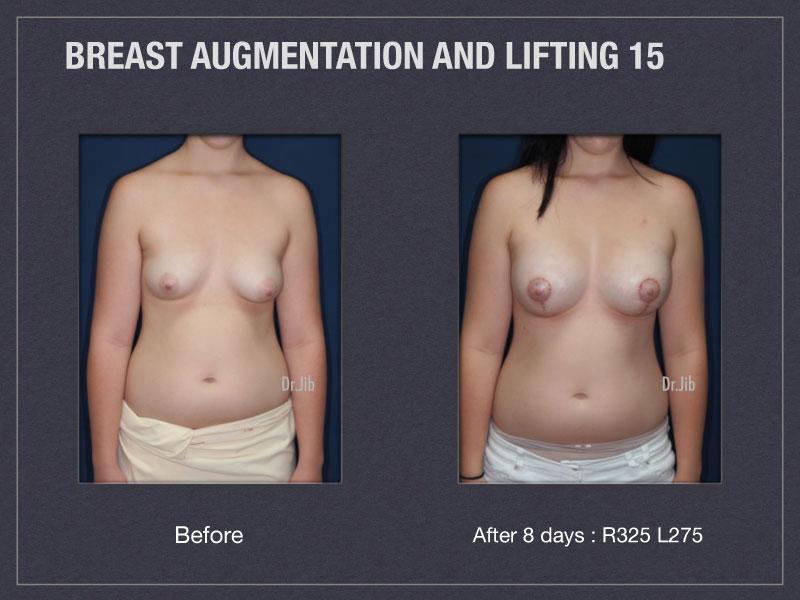 breast-augmentation-lift-29