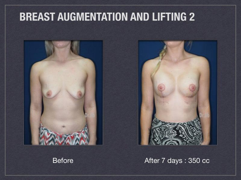 breast-augmentation-lift-3