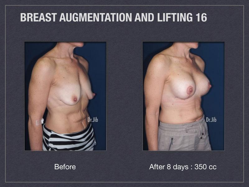 breast-augmentation-lift-32