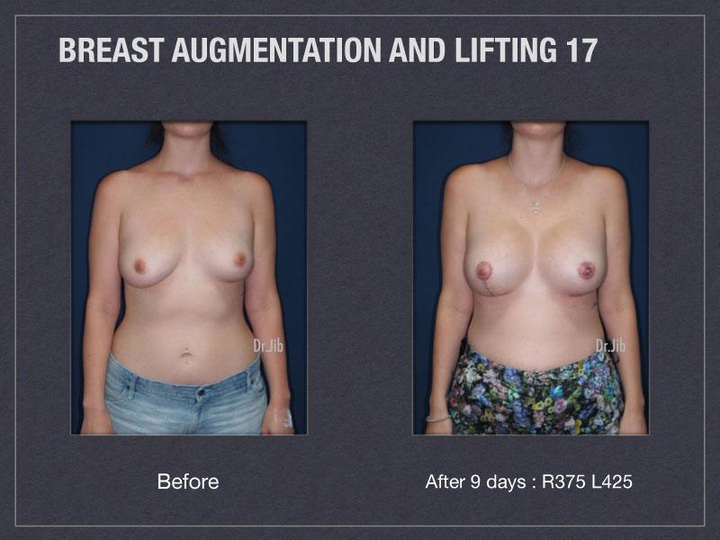 breast-augmentation-lift-33