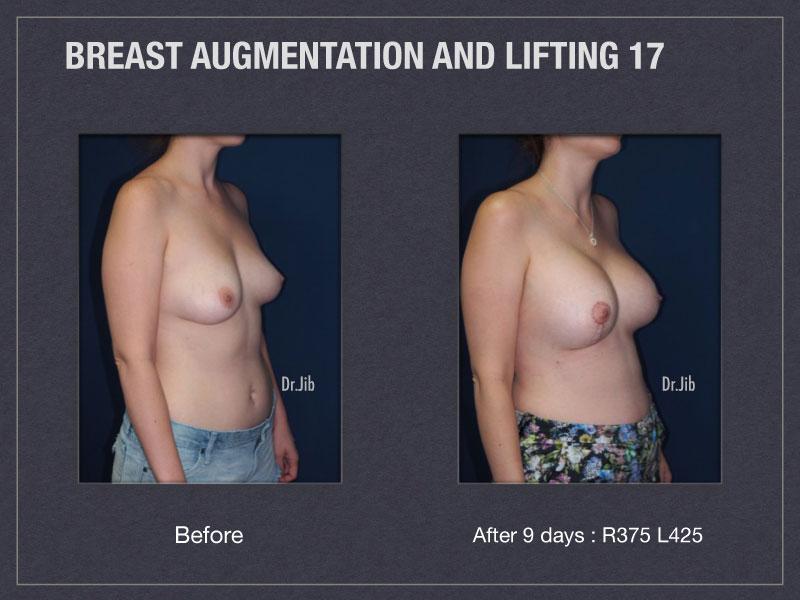 breast-augmentation-lift-34