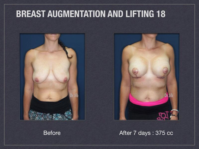 breast-augmentation-lift-35