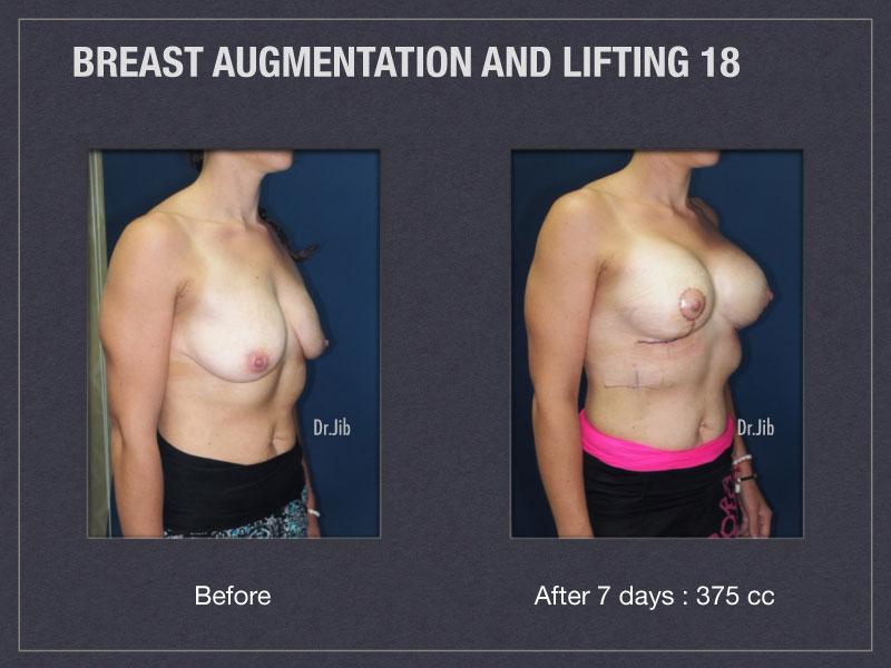 breast-augmentation-lift-36
