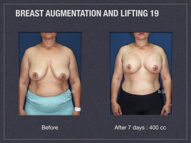 breast-augmentation-lift-37