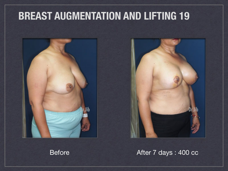 breast-augmentation-lift-38