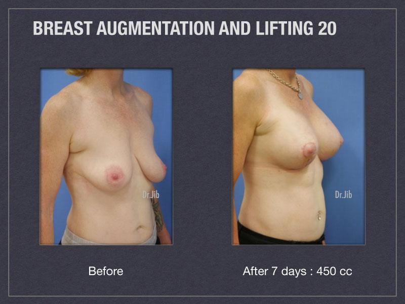 breast-augmentation-lift-40