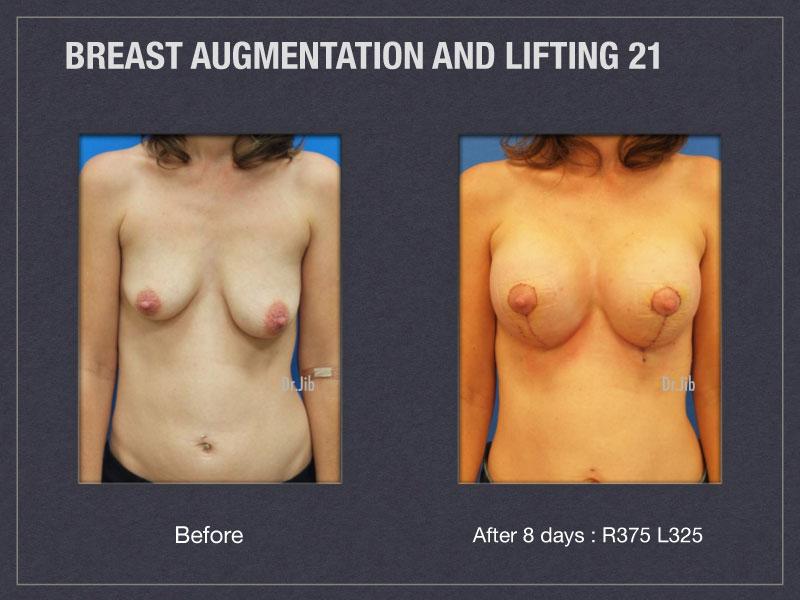 breast-augmentation-lift-41