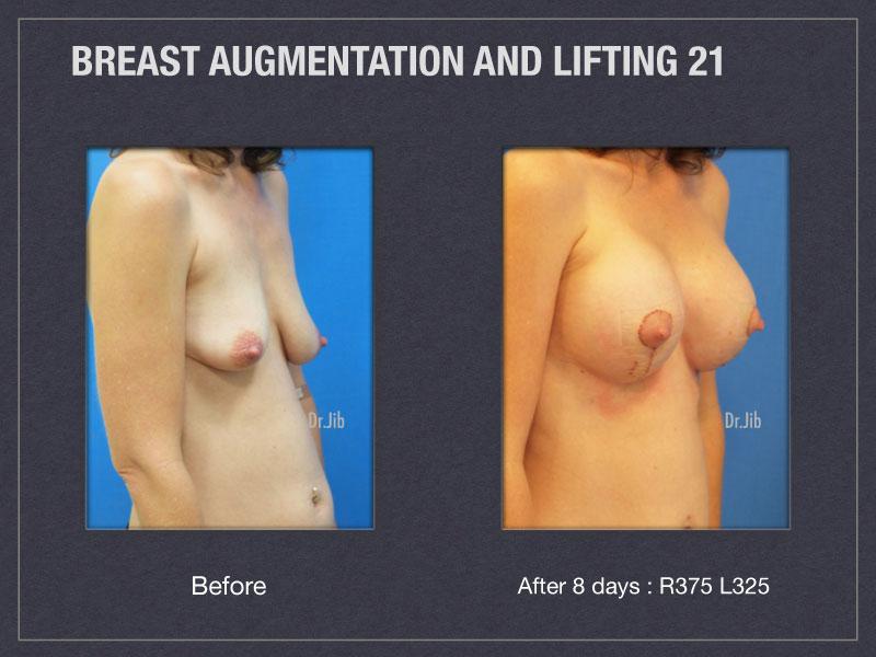 breast-augmentation-lift-42
