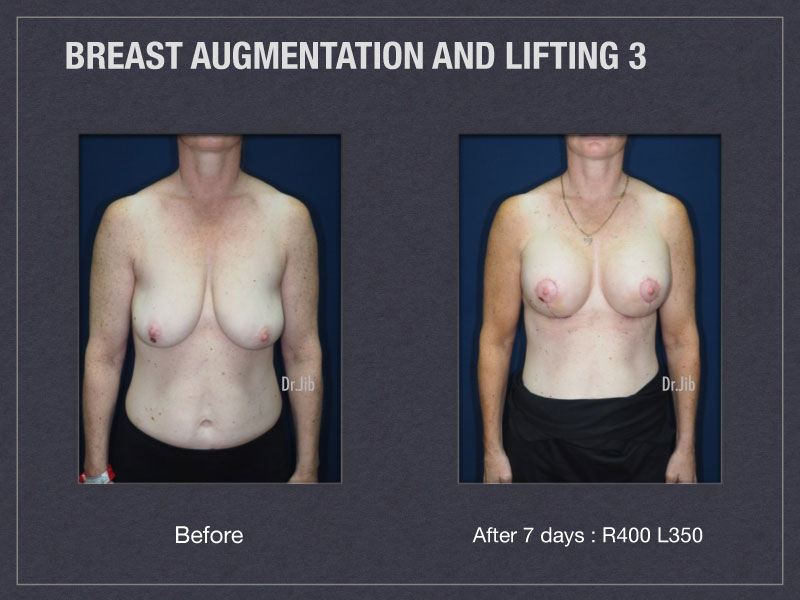 breast-augmentation-lift-5
