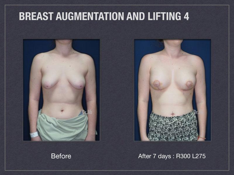 breast-augmentation-lift-7