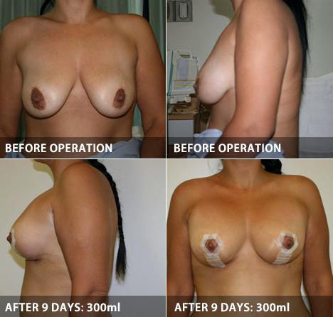 breastLift_05