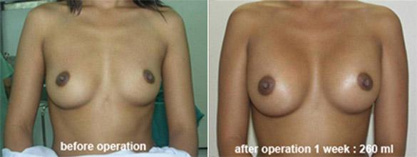 breast_enlarge_be01